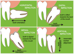 impaction-types
