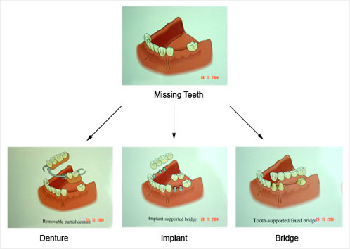 Dental implants, Denture & Bridge