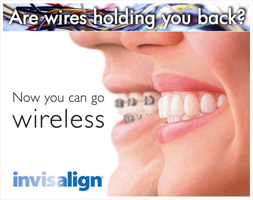 Invisalign You Can Trust - Coden