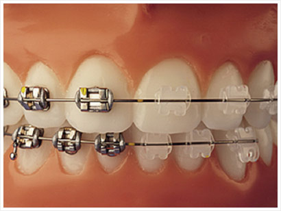 Sampl of Braces we can do